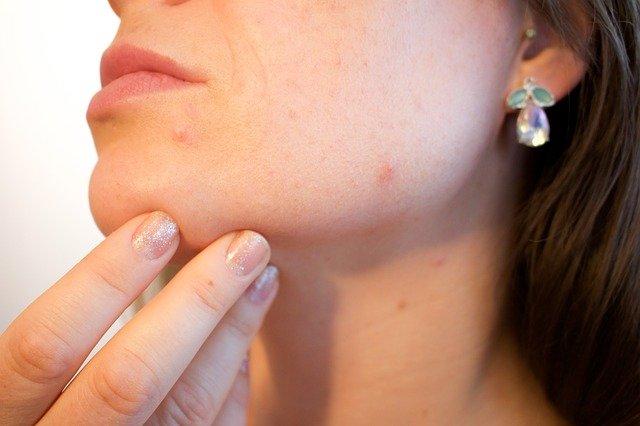acne vicks